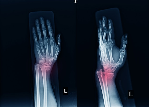 X-ray left wrist joint fracture with displacement distal end left radius. Premium Photo