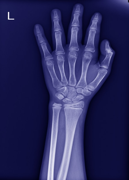 X-ray left wrist no fracture and normal joint. Premium Photo