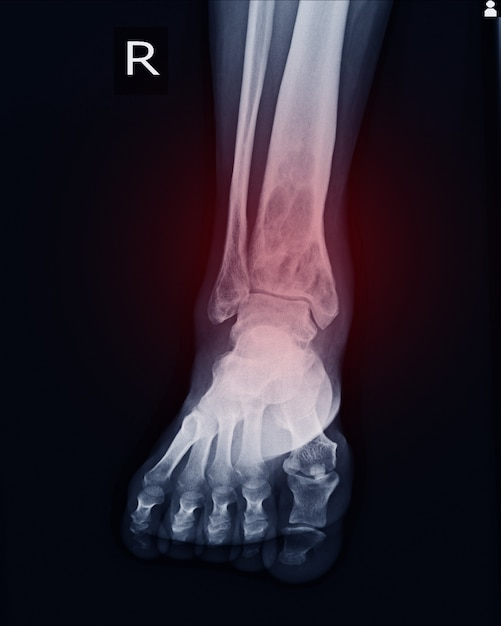 X-ray rt.ankle finding intramedullary osterolytic lesion of right distal tibia Premium Photo