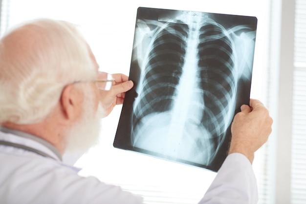 X線の確認 無料写真
