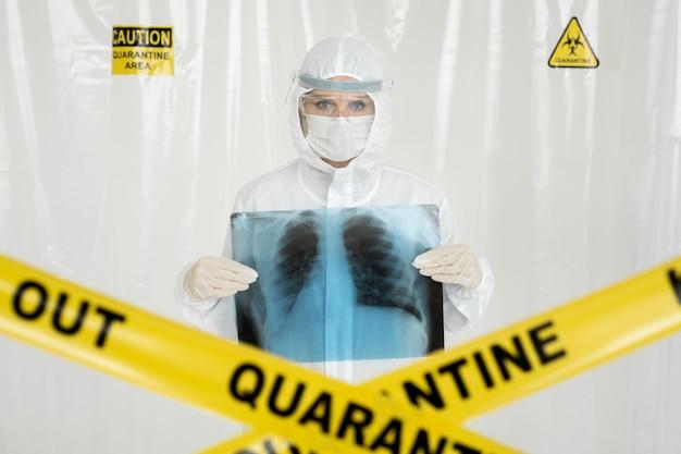 胸の上の肺のx線を保持している若い医者のクローズアップショット。黄色の線は検疫を禁止します。コロナウイルスの概念 Premium写真