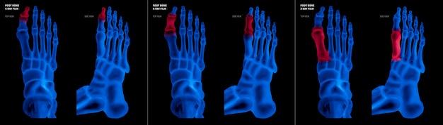 足の親指の足の骨のx線の青いフィルムは、異なる痛みと関節領域に赤いハイライトをつけます Premium写真