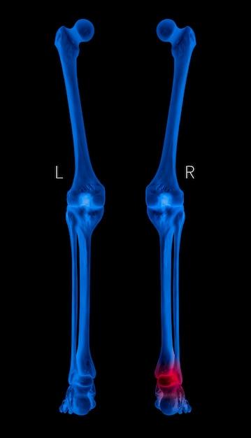 関節炎の足首関節痛領域における赤色のハイライトを伴うx線ヒト脚骨背面図 Premium写真