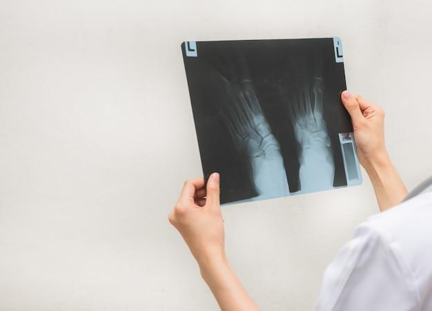 X線画像を確認すると、患者の問題があります。 Premium写真