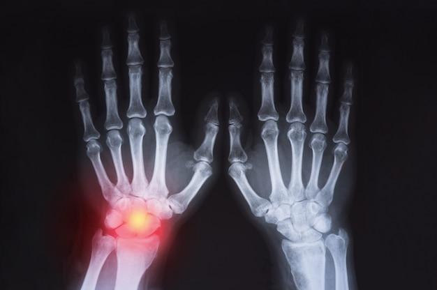 人間の手のx線が赤で強調表示されます。 Premium写真