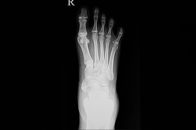 Xray film of a foot of the patient Premium Photo