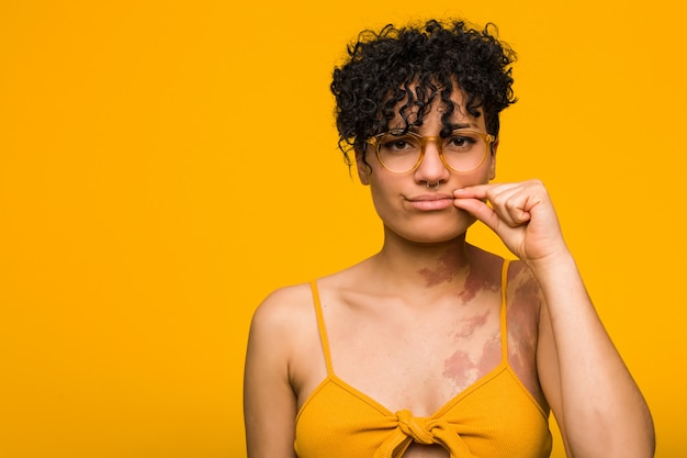 Young african american woman with skin birth mark with fingers on lips keeping a secret. Premium Photo