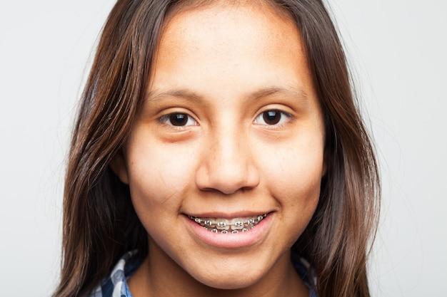 Молодая девушка улыбается с техникой на зубах Бесплатные Фотографии