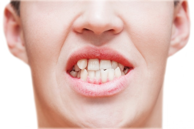 Young man showing crooked growing teeth. the man needs to go to the dentist to install braces. Premium Photo