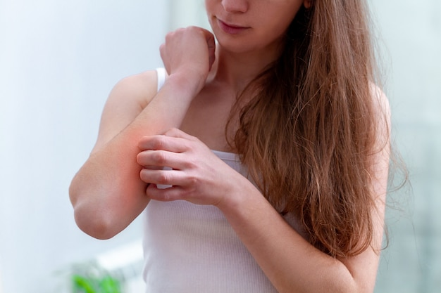 Young person suffering from itching on her skin and scratching an itchy place. Premium Photo