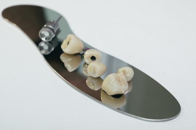 Циркониевая коронка, искусственный жевательный зуб с ортопедической отверткой. циркониевая коронка и циркониевый гибридный абатмент. Premium Фотографии