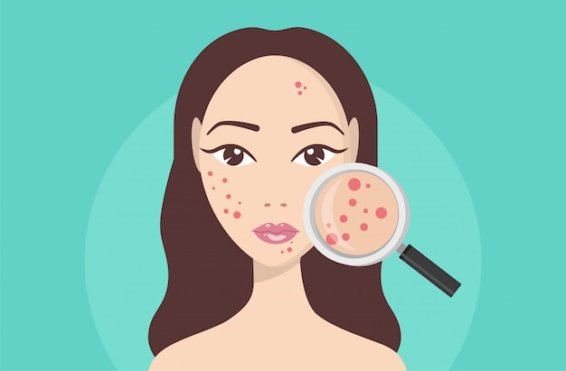 にきび、肌の問題、にきびの段階。彼女の顔に嚢胞性にきびを探して虫眼鏡を保持している女性。 Premiumベクター