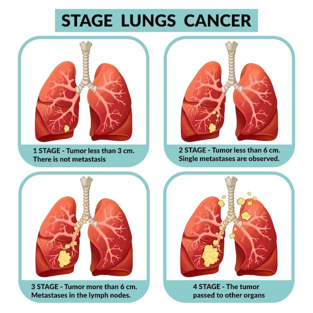 Стадии рака легких. Premium векторы