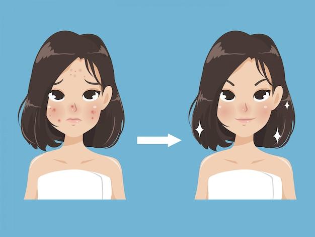 Прыщи и красота у молодой женщины. Premium векторы