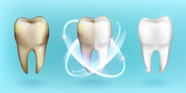 Чистый и грязный зуб, отбеливание или очистка зубов Бесплатные векторы