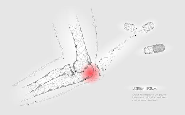 Капсульное лекарство от болезни локтевого сустава. красная область боли низкополигональная медицина будущего Premium векторы