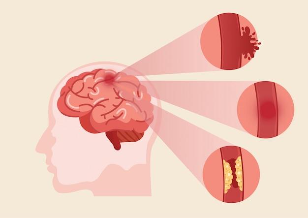 Иллюстрация инсульта человеческого мозга. Premium векторы