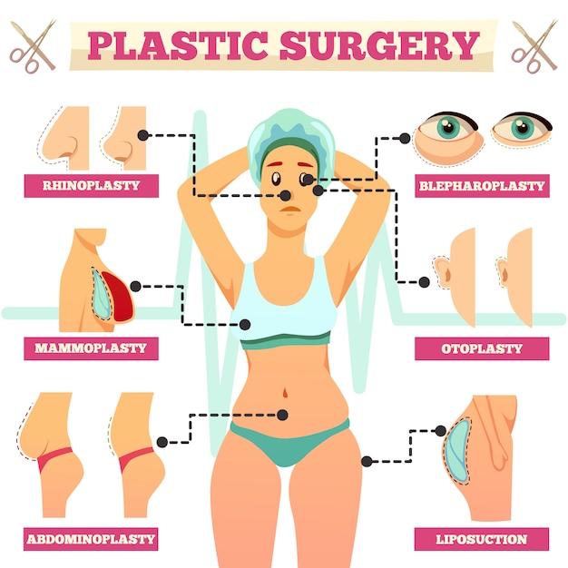 Ортогональная блок-схема пластической хирургии Бесплатные векторы