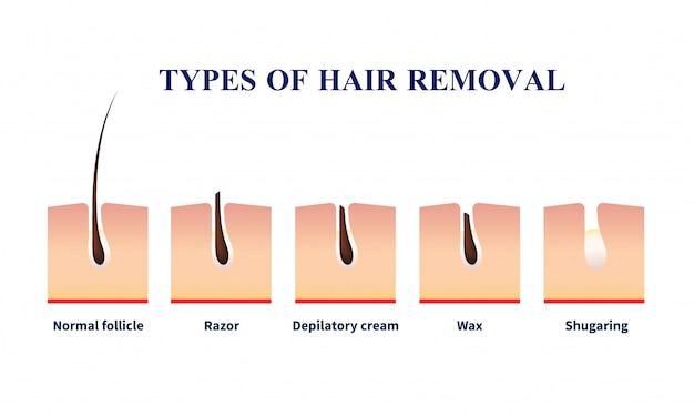 Типы удаления волос иллюстрация Бесплатные векторы
