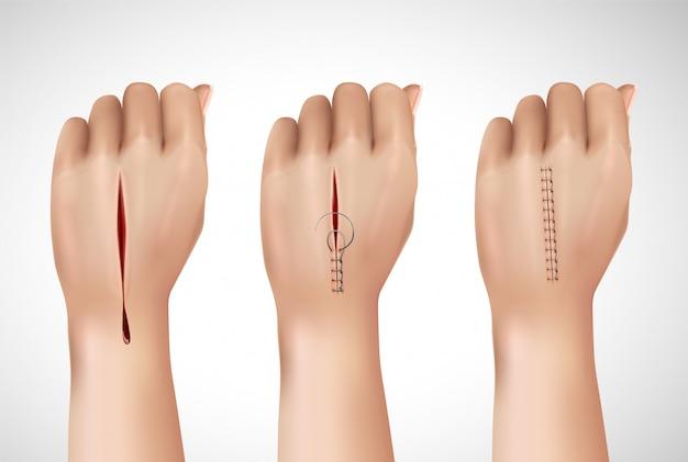 Хирургический шовный шов реалистичной композиции с изолированными изображениями человеческой руки на разных этапах сшивания Бесплатные векторы