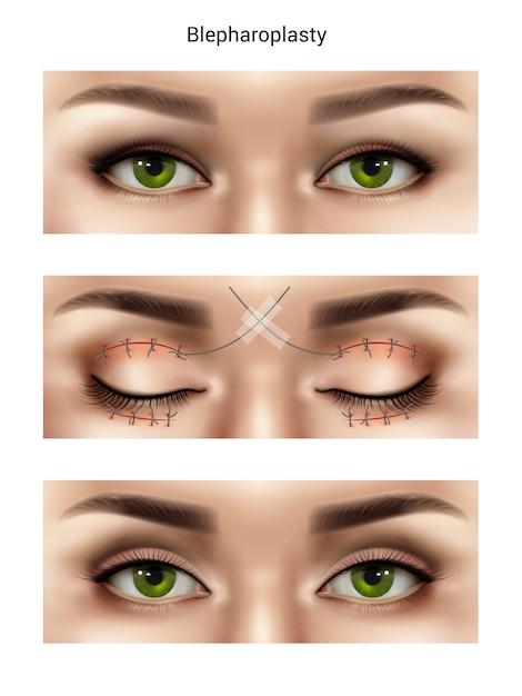 Хирургические швы реалистичной композиции с изображениями женских глаз на разных этапах блефаропластики Бесплатные векторы