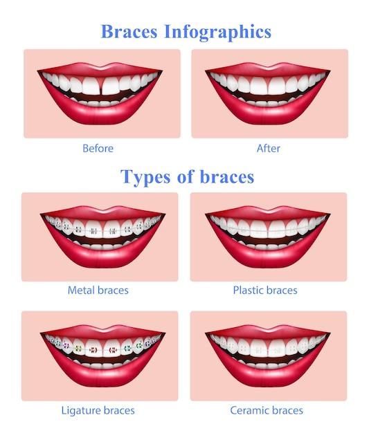 Раскрытая пасть с красными глянцевыми губами, показывающая металлопластиковые керамические зубные скобки, реалистичные инфографики Бесплатные векторы