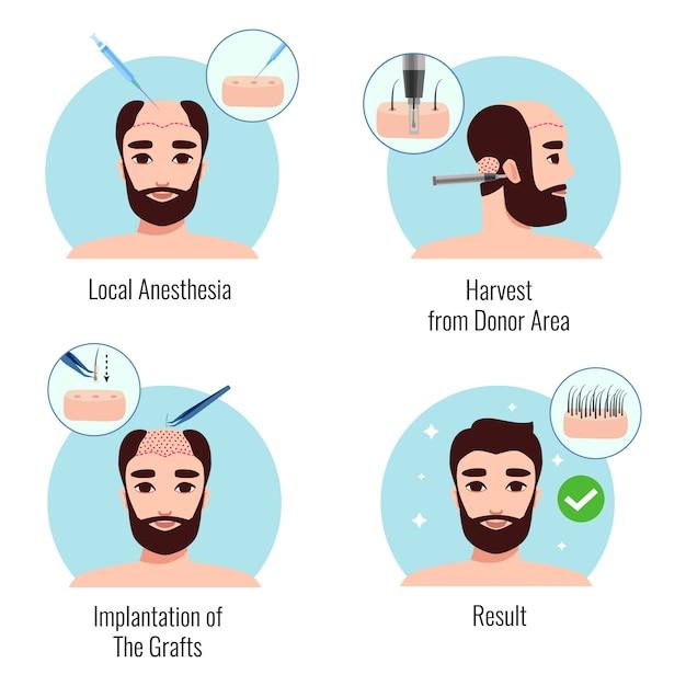 分離された植毛手順の段階でひげを生やした男のデザインコンセプト 無料ベクター