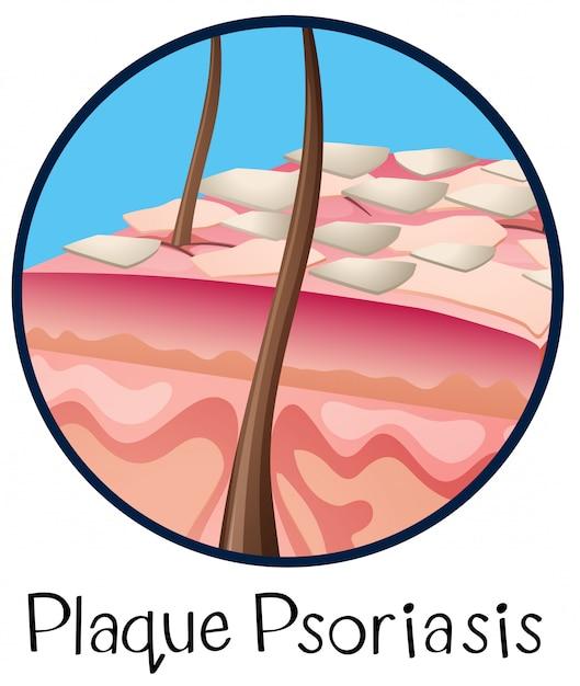 ヒトの解剖学的プラークの乾癬 Premiumベクター