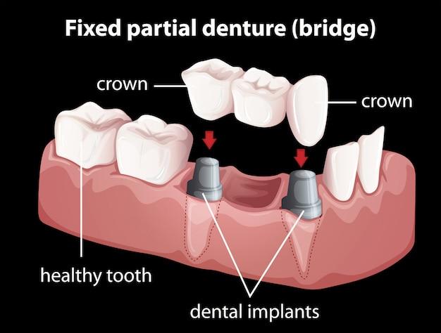 固定部分義歯 Premiumベクター