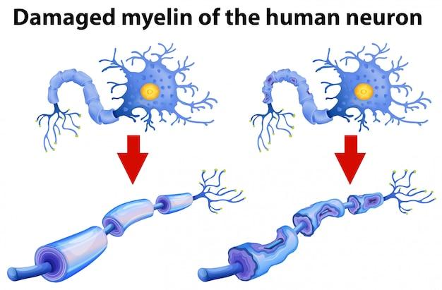 ヒトニューロンのミエリン傷害 無料ベクター