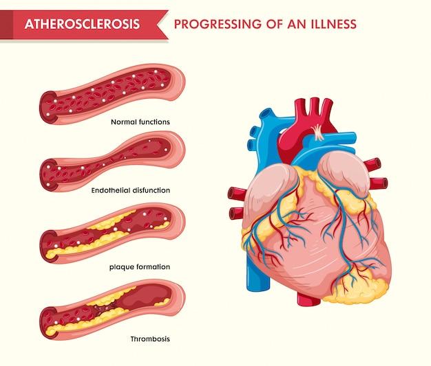 アテローム性動脈硬化症の科学的医療イラスト 無料ベクター