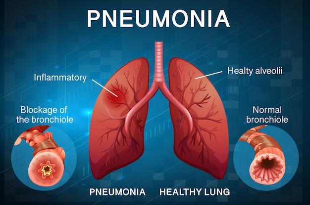 Дизайн плаката по пневмонии с легкими человека Бесплатные векторы