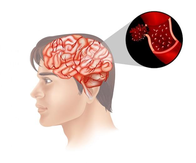Рак мозга у человека Бесплатные векторы