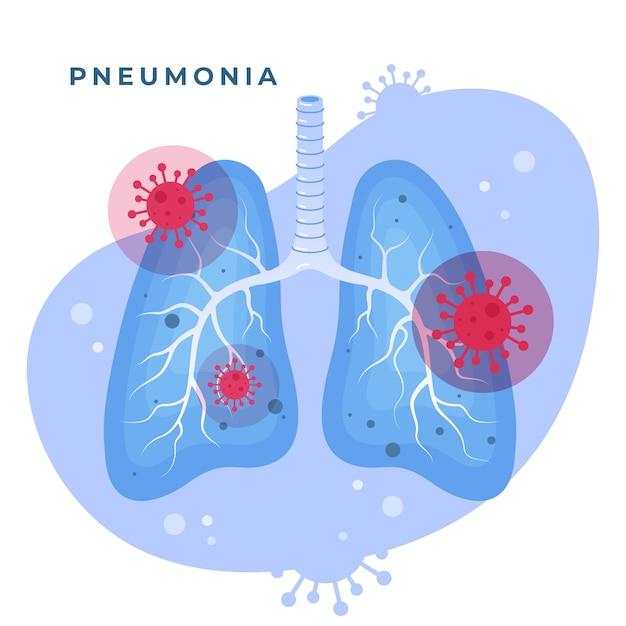 Коронавирусная пневмония и иллюстрированные легкие Бесплатные векторы