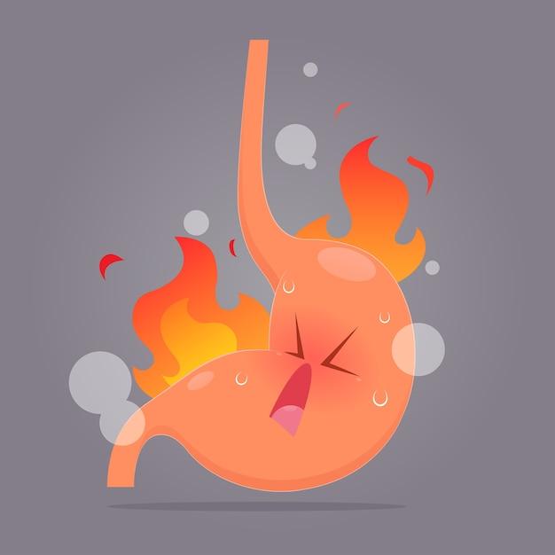 Иллюстрация из кислотного рефлюкса или изжоги Premium векторы