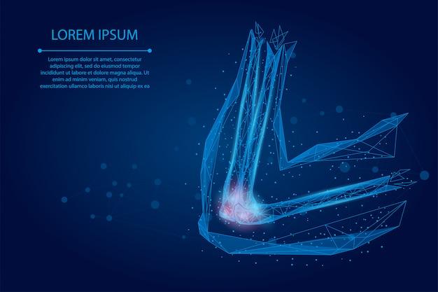 マッシュラインを抽象化し、人間の腕の関節をポインします。低ポリデザイン肘治療痛み治療ベクトル図 Premiumベクター