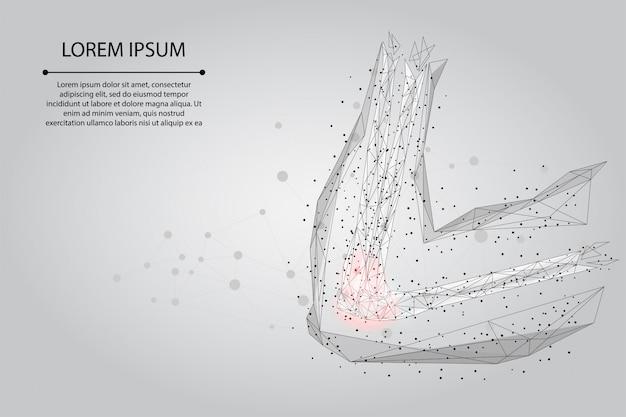 マッシュラインを抽象化し、人間の腕の関節をポインティングします。低ポリデザイン肘治療痛み治療ベクトル図 Premiumベクター