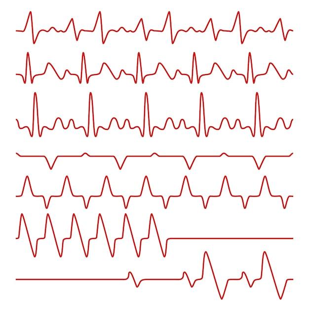 Линия кардиограммы или экг на мониторе Premium векторы