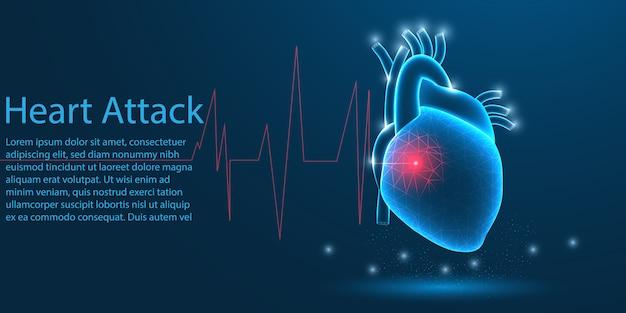 Человеческий сердечный приступ, концепция низкого поли. Premium векторы