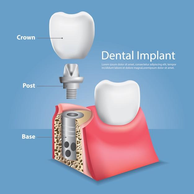 人間の歯と歯科インプラントベクトル図 Premiumベクター