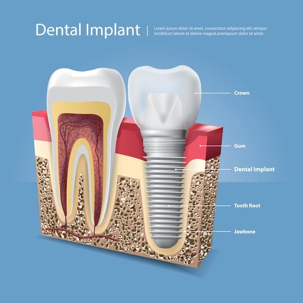 人間の歯と歯科インプラントイラスト Premiumベクター