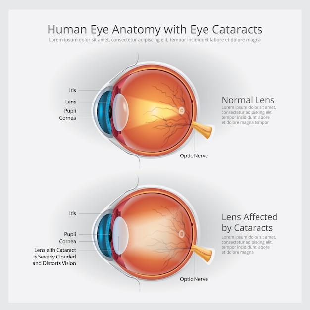 白内障の視力障害および正常な眼球の解剖学のイラスト Premiumベクター
