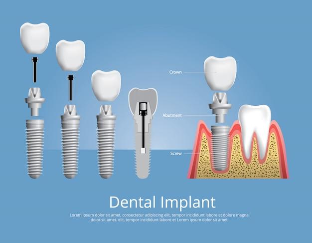 人間の歯と歯科用インプラントのベクトル図 Premiumベクター