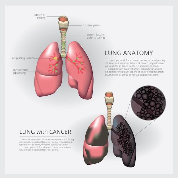Легкое с деталями и иллюстрация рака легких Premium векторы