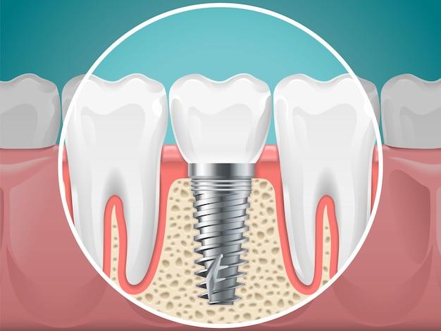 口腔病学のイラスト。歯科インプラントと健康な歯ベクトル健康歯とインプラント口腔病学、歯科のインストールとフィクスチャ Premiumベクター