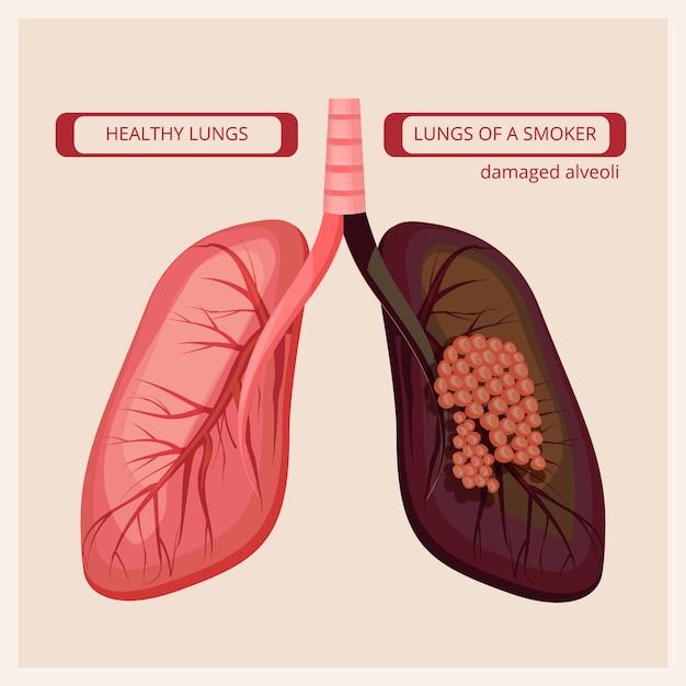 喫煙者の肺。煙人体損傷肺がんベクトル医療インフォグラフィック写真 Premiumベクター