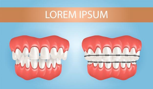 クロスバイト歯を持つジアステマとブレース Premiumベクター