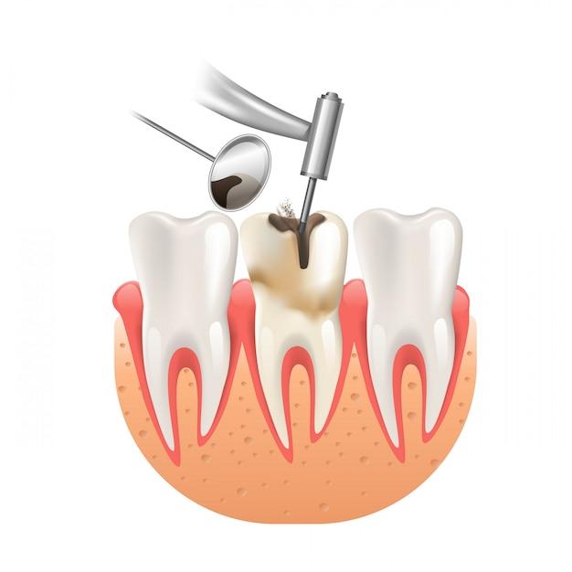 歯の歯科ドリルによるきれいな虫歯 Premiumベクター