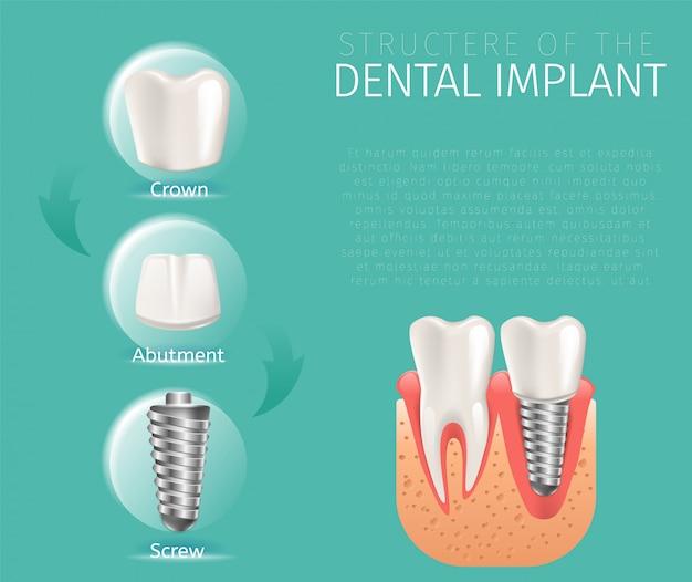 Реалистичная структура изображения зубного имплантата Premium векторы