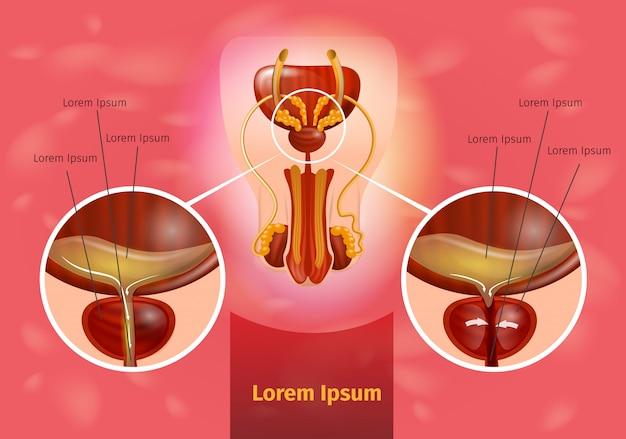 前立腺炎のリアルなベクタースキーム Premiumベクター